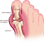 Blog 8Feb11 Gout  150x150 Gout : 5 Ways to Prevent and Reverse It