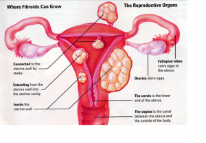 How Can You Treat Fibroids Naturally